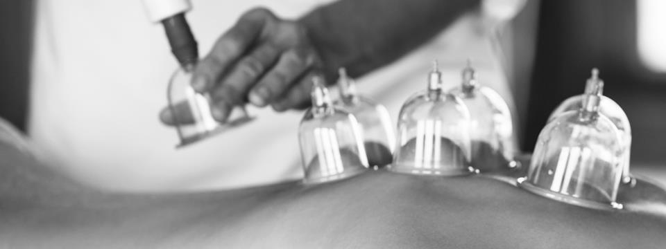 acupuncture, cupping, spa, chinese therapy, TCM