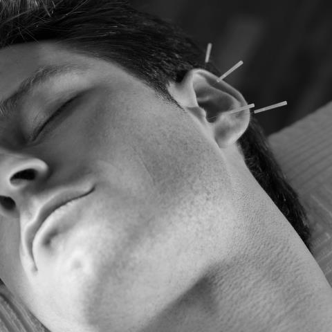 ear accupuncture